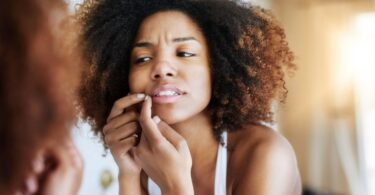 best tube creams for pimples in nigeria